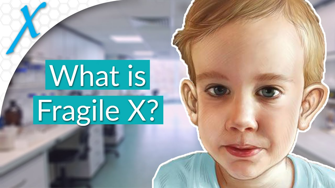 What Is Fragile X Syndrome