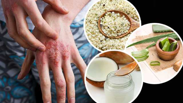 Natural Treatment For Eczema